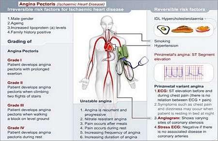 angina pectoris care plan